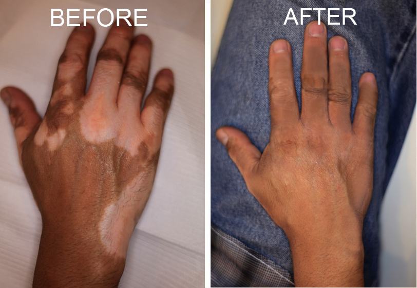 home remedies for vitiligo Home remedies for vitiligo vitiligo are chalk-white spots, streaks, and patches of skin and hair where normal pigmentation has been lost due to destruction of the melanocytes, or pigment cells once the melanocytes are destroyed, no more melanin, or pigment, is made in these sites.